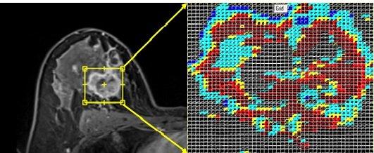 quantitative-imaging